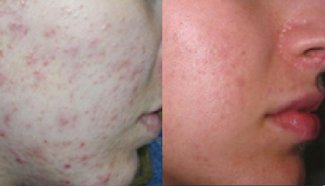 acne and scar removal treatment Toronto