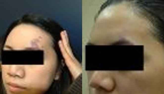 birthmark removal Toronto patient