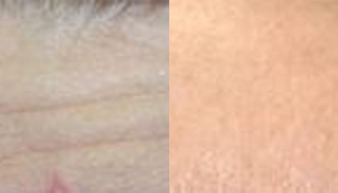 wrinkles treatment Toronto