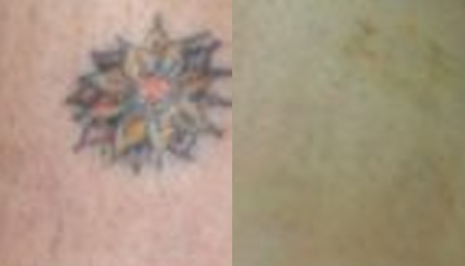 Laser tattoo removal Patient