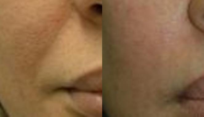 Laser treatment Toronto patient