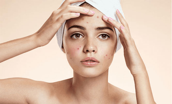 acne removal treatment toronto
