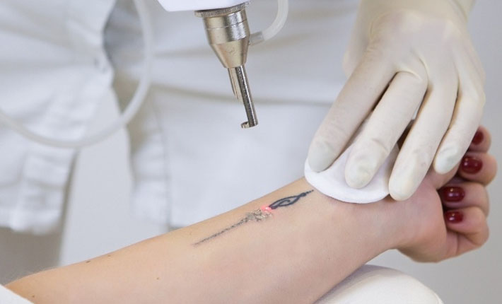 Laser Tattoo Removal in Toronto
