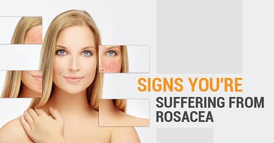 Rosacea treatment in Toronto