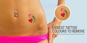 Tattoo removal in Toronto