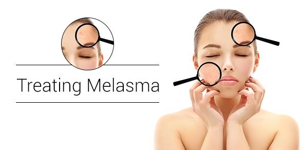Melasma treatment in Toronto