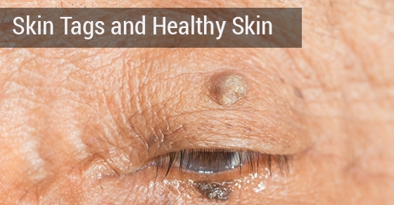 Skin tags treatment in Toronto