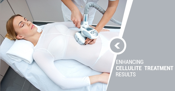 Cellulite treatment in Toronto