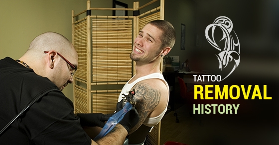 Tattoo-Removal-History
