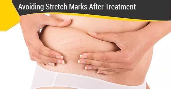 Avoiding-stretch-marks-after-treatment