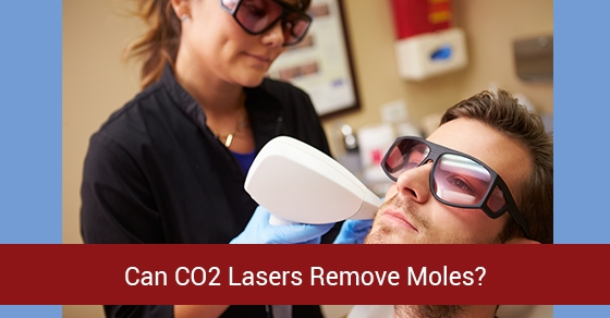 Can-CO2-Lasers-Remove-Moles