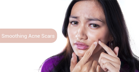 Smoothing-Acne-Scars