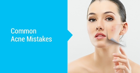 Common-Acne-Mistakes