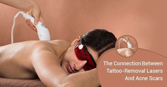 Tattoo Removal Lasers Toronto