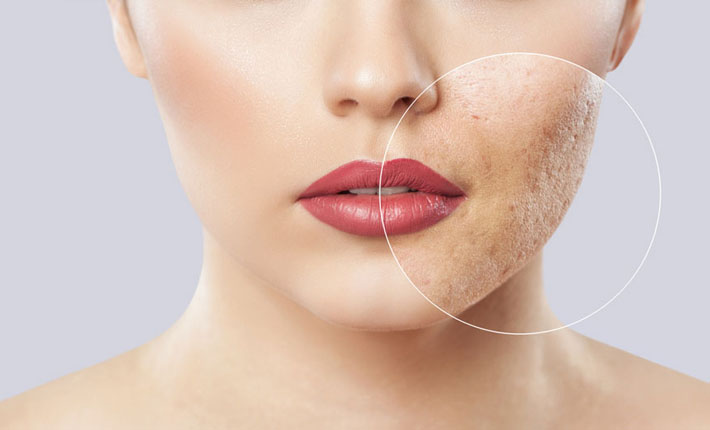 Acne Scars Treatment Toronto