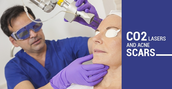 CO2 Lasers And Acne Scars Treatment