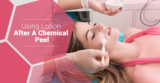 Using Lotion After A Chemical Peel -Fairview Laser Clinic Inc