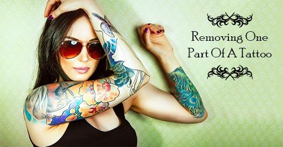Laser Tattoo Treatment toronto