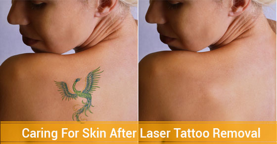 Laser Tattoo Removal -Fairview Laser Clinic Inc