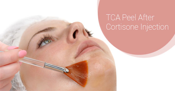 TCA Peel After Cortisone Injection -Fairview Laser Clinic Inc