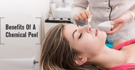 Benefits Of A Chemical Peel