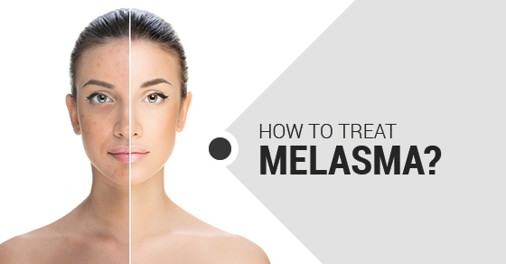 Melasma treatment -Fairview Laser Clinic Inc