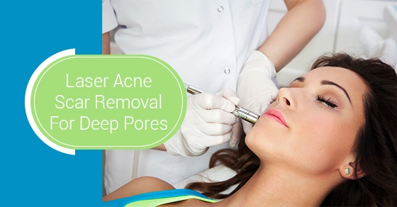 Laser Acne Scar Removal For Deep Pores