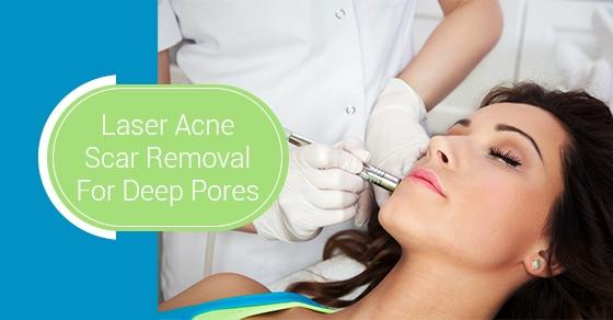 Laser Acne Scar Removal toronto