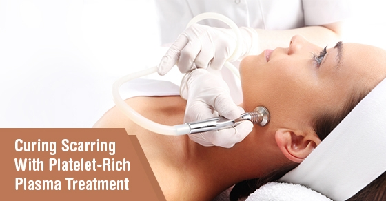 PRP Treatment toronto