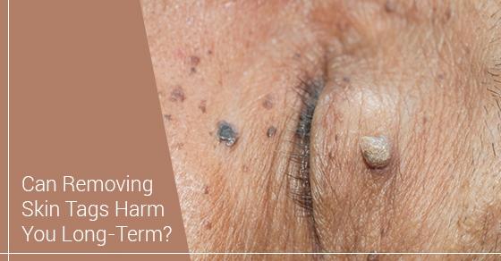 skin tag removal treatment toronto
