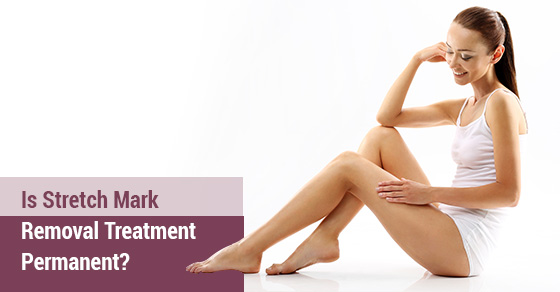 Stretch Mark Removal Treatment Toronto