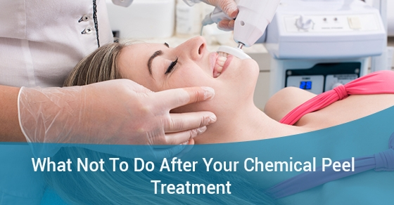 What Not To Do After Your Chemical Peel Treatment