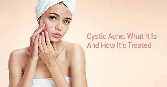 cystic acne removal treatment toronto