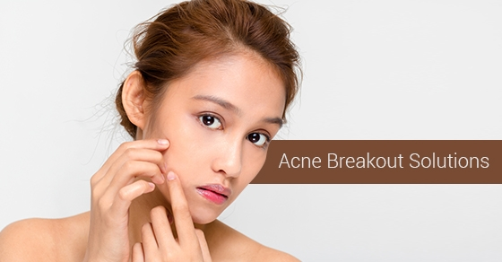 Acne treatment toronto