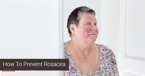 Rosacea treatment toronto