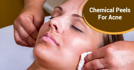 chemical peel treatment toronto