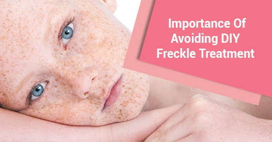 Importance Of Avoiding DIY Freckle Treatment