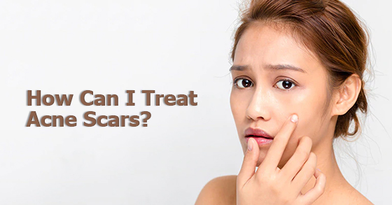 How Can I Treat Acne Scars?