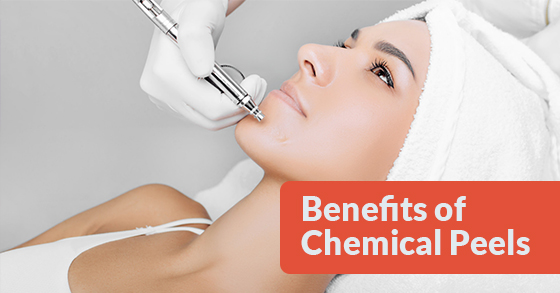 Chemical Peels toronto