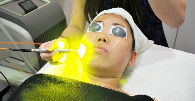 What Are The Benefits Of Yellow Laser Treatments?
