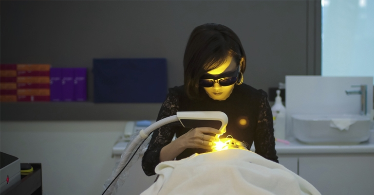 Yellow laser treatment Toronto