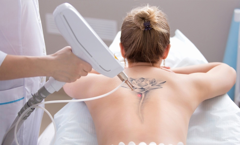 Tattoo Removal procedure toronto