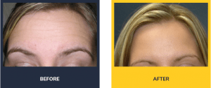 Botox procedures