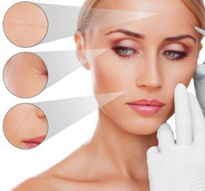 Botox treatment Toronto