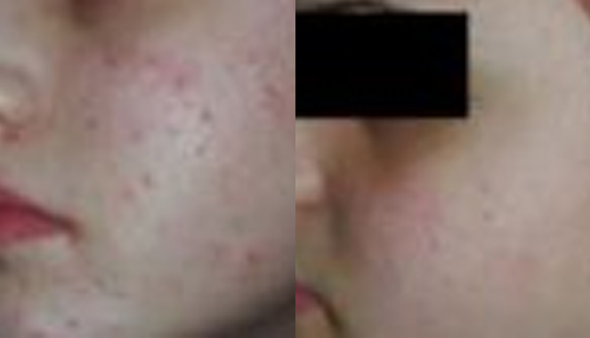 Acne &  Acne Scar Treatment