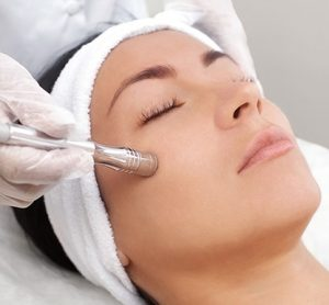 acne scar treatments in Toronto