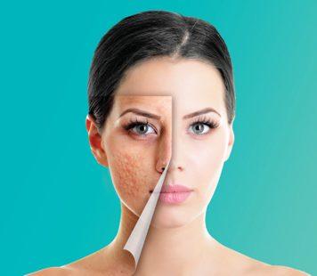 Acne & Acne Scar Treatment Toronto
