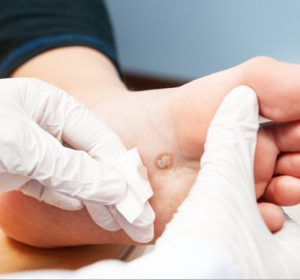 laser treatments for Corns, Calluses & Warts toronto