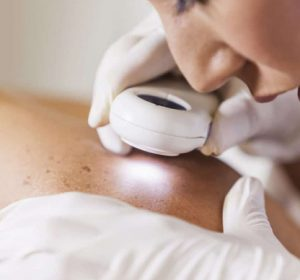 laser treatment for non-pigmented Lesions toronto