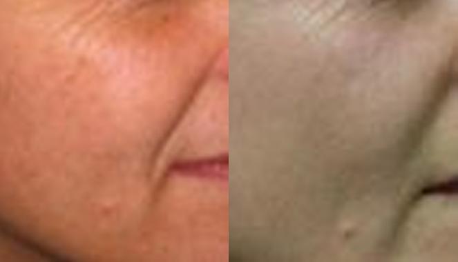 Obagi NuDerm Skin Care
